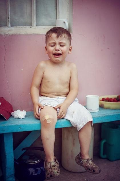 мальчик с пораненной коленкой